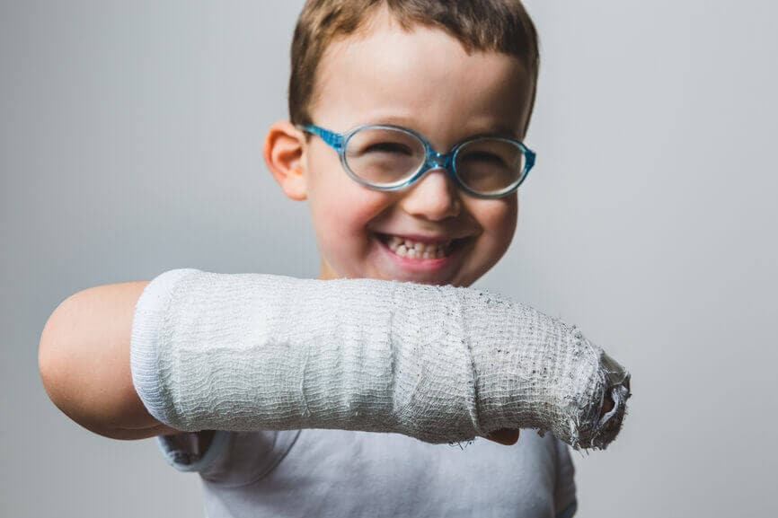 Child showing off their arm cast